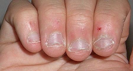 kako prestati sa grickanjem noktiju